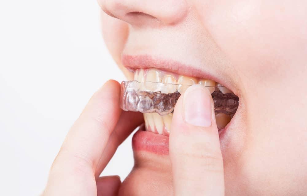 Bliv fri for tandskæren og få en bedre søvn